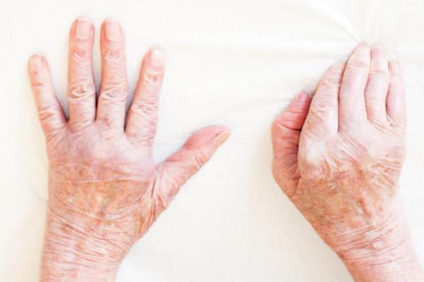 Afla cum poti remedia si trata durerile de genunchi