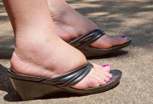 Probleme cu circulatia sangelui la picioare, Foto: myfattystory.blogspot.ro