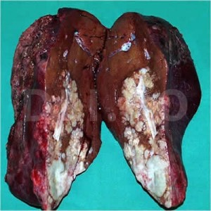 Cancer hepatic primar