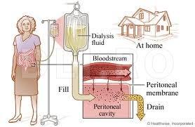 Cum-functioneaza-dializa-peritoneala
