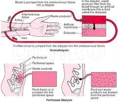Hemodializa-si-dializa-peritoneala