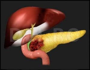 cancerul pancreatic se poate trata