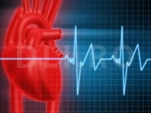 Infarctul miocardic poate duce la aritmie