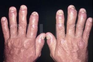Maini afectate de artrita psoriazica