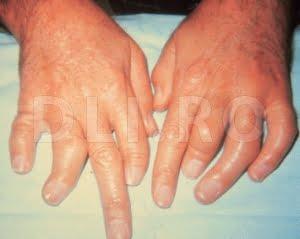 Mainile afectate de artrita