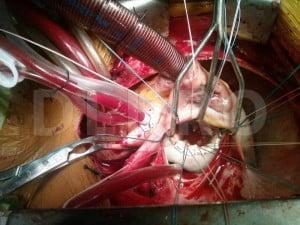 Operatia pe cord deschis