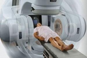Tratamentele cancerului de prostata