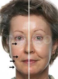 Curentii-galvanici-si-tratamentul-facial