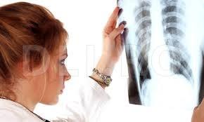 Fibroza chistica – Mucoviscidoza, boala genetica mortala