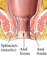 Metode de tratament pentru fisura anala