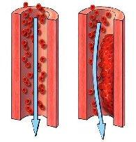 Cheaguri de sange – Cauze si metode de tratament