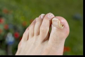 infectie fungica unghii