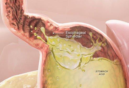 Arsuri esofag, Sfincterul, Acidul stomacal, Foto: carpatys.com