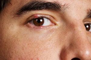 Orjelet la ambele pleoape ale ochiului, Foto: eyedoctorguide.com