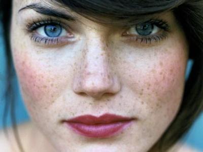Ten cu pistrui, Foto: makeup.allwomenstalk.com