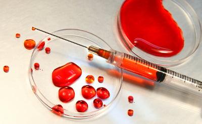 Analize de sange, Foto: zdroow.pl