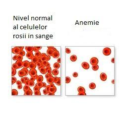 Anemia, Foto: allwellness.wordpress.com