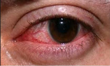 Boala Behcet, leziuni la ochi, Foto: jusnoni.net