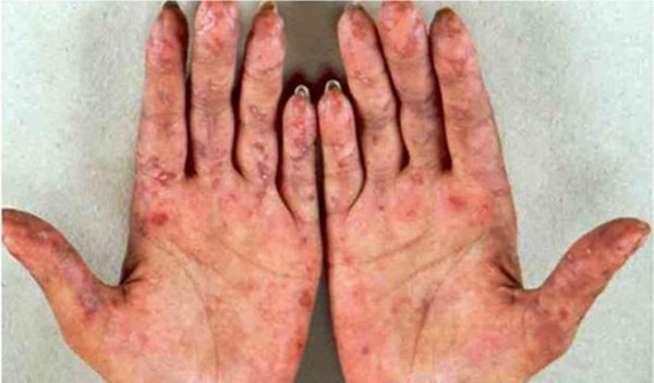 Boala afecteaza pielea, Foto: takvimhaber.com