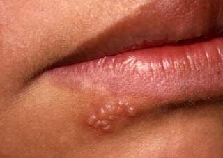 Herpes la gura, Foto: earvinkalen.blogspot.com