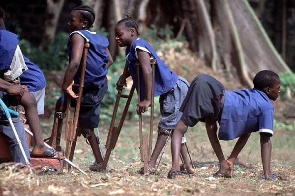 Poliomelita duce la invaliditate, Foto: whatispolio.weebly.com