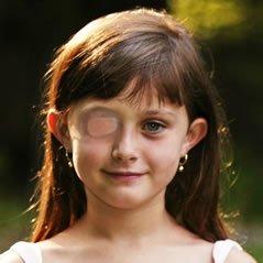 Ambliopie - ochiul lenes, Foto: lebloglunettes.com