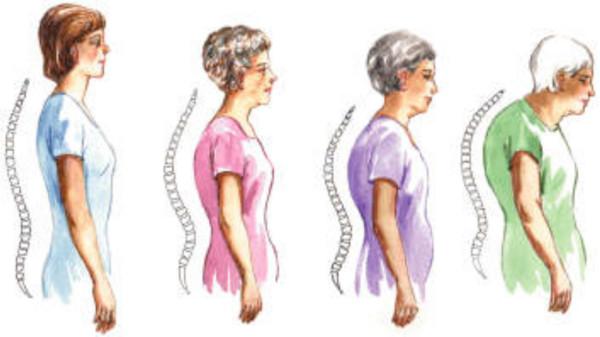 Devieri ale coloanei datorita pozitiei incorecte a corpului, Foto: fitgirlreport.com
