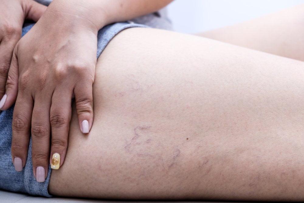 vene de păianjen pe spatele picioarelor