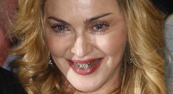 Bijuterii dentare la Madonna, Foto: sickchirpse.com