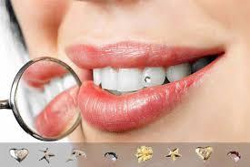 Bijuterii dentare, Foto: drmatin.ro