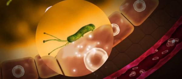Bacteria Heliobacter pylori inflameaza mucoasa peretelui stomacului