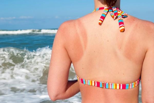 Arsuri solare mici, Foto: beautystylo.com