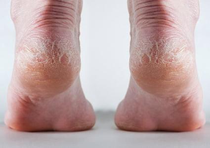 Picioare uscate și crăpate, Foto: gaitway.com.au