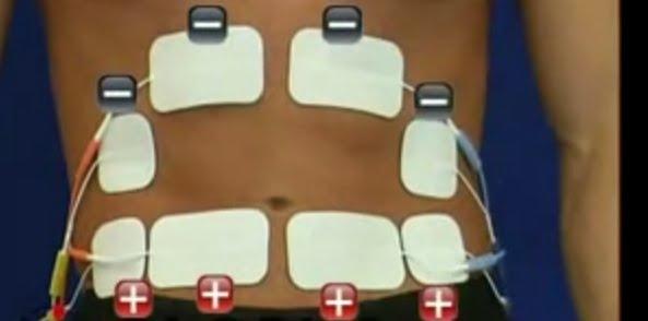 Poziția electrozilor pe abdomen