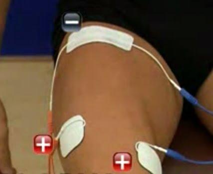 Poziția electrozilor pe coapsă