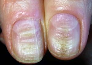 Artrită, carență de fier, Foto: toenailfungusreviews.org