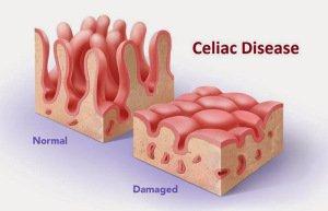 Boala celiacă este o afecțiune care provoacă malabsorbție, Foto: glutenfreelife247.com