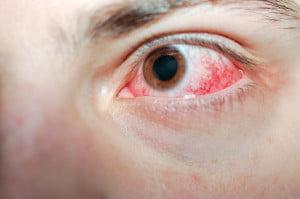 Ochii injectați din cauza oboselii, Foto: activeeyes.ca