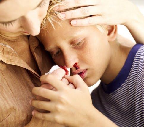 Sângerare nazală, Foto: aggressivekinder.wordpress.com