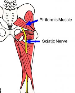 Sindrom piriformes, mușchiul piriformis și nervul sciatic, Foto: buficaf.606h.net