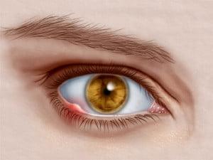 Urcior la ochi, Foto: eyehealthweb.com