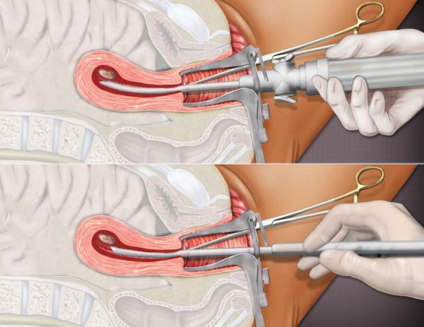 Avortul, Foto: driverlayer.com