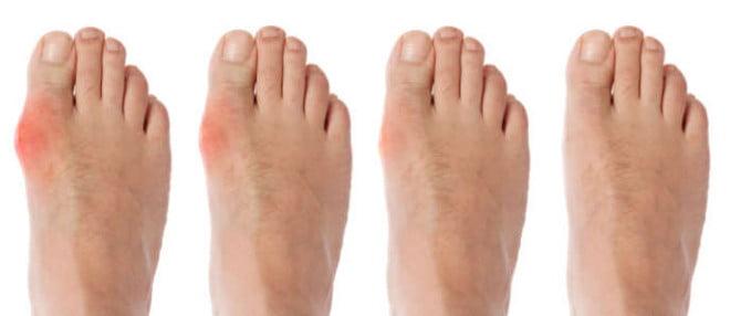 Guta, boală manifestată prin inflamatia articulațiilor, Foto: answers.com