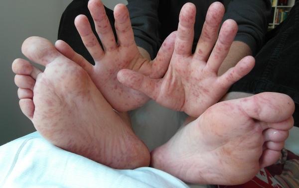 Deteriorarea integrității pielii în cazul Sindromului Reye, Foto: lookfordiagnosis.com