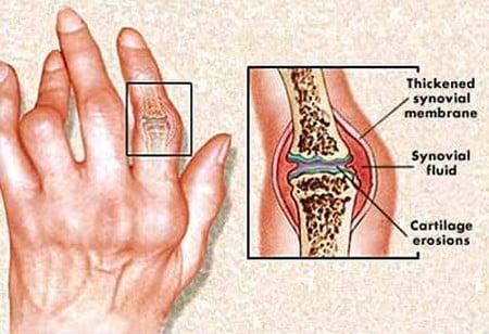 Artrita reumatoidă, Foto: doctortipster.com