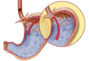 Boală de reflux gastro-esofagian, Foto: laparoscopyindia.com