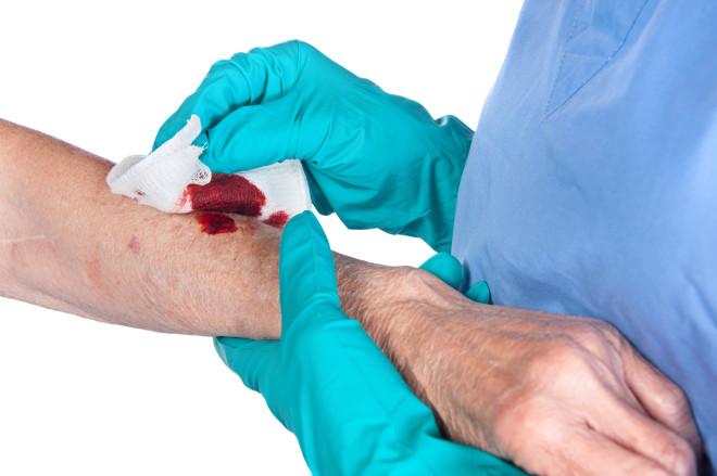 Curățarea și dezinfectarea rănii, Foto: lifebridgeblogs.org