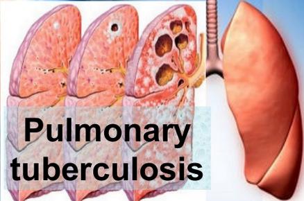 Tuberculoza pulmonară, Foto: pixshark.com