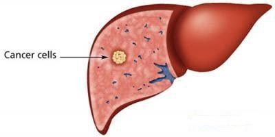 Cancer hepatic, Foto: thegioidaudua.com