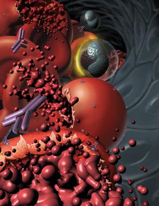 Anemie hemolitică, Foto: trialx.com